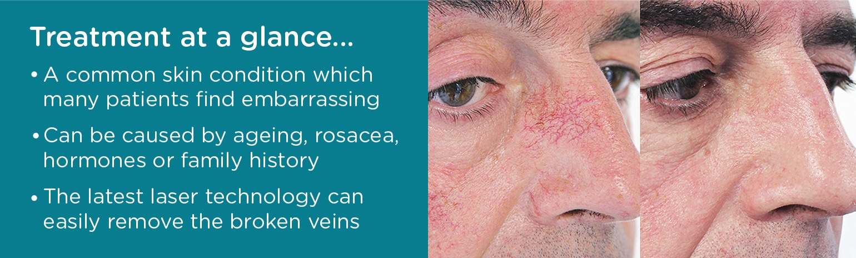 Laser Facial Vein Removal Benefits