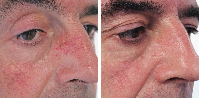 fast herbal removal of facial thread vein jpg 1080x810