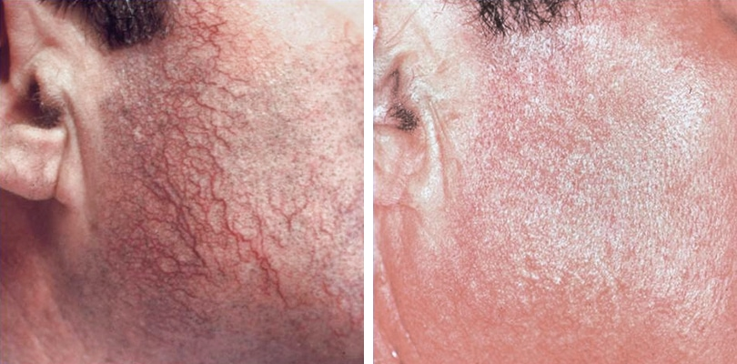 Laser facial vein removal leeds bradford and ilkley good skin days