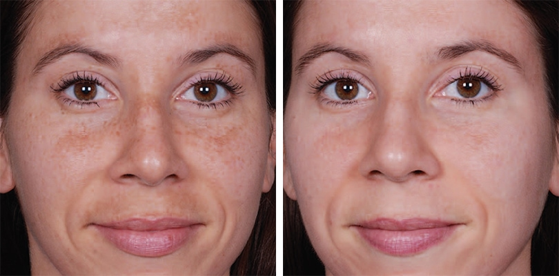 Hyperpigmentation Face Before And After Obagi treatment resultsHyperpigmentation Face Before And After