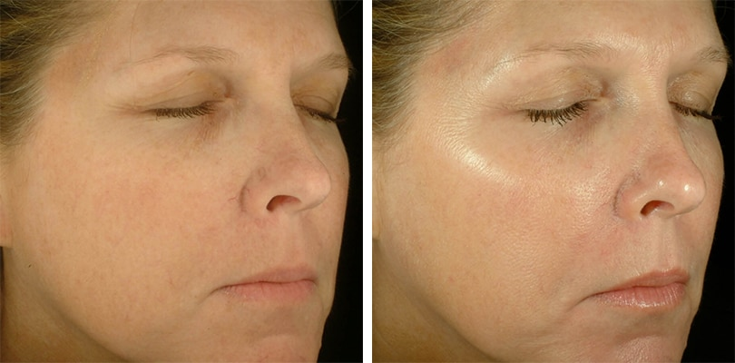Obagi Blue Peel Radiance Leeds - Before and After