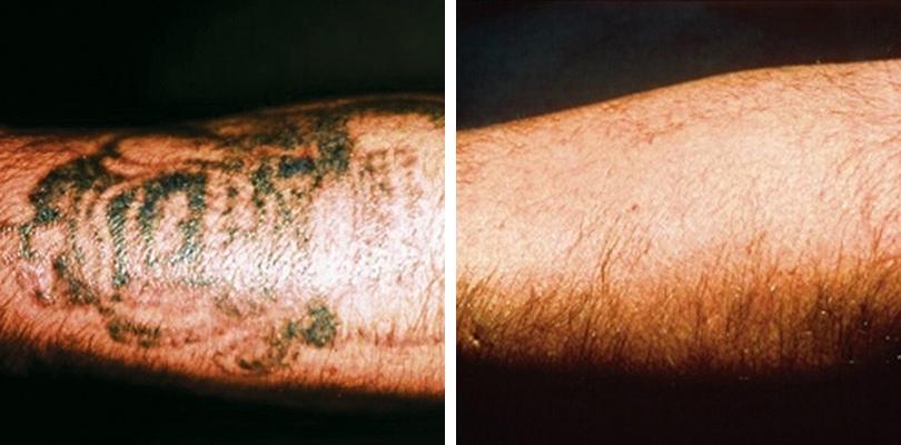 Laser Tattoo Removal. Leeds, Bradford and Ilkley - Good Skin Days