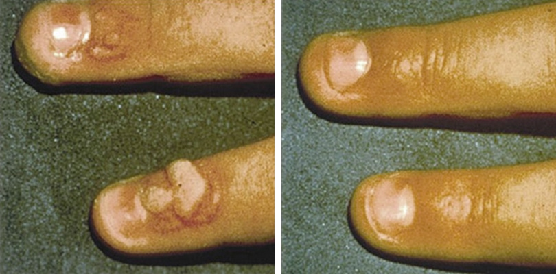 Treatment of Flat Wart – How to Get Rid of Flat Warts on ...