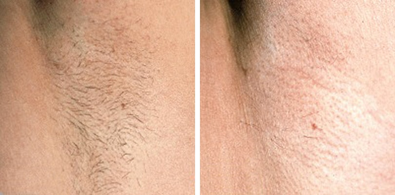 Laser Hair Removal for Transgender People - Before and After