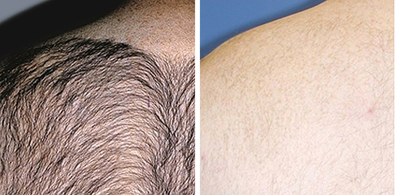 Laser Hair Removal for Men - Before and After