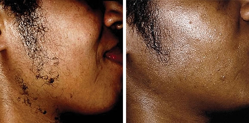 Facial hair removal for black men