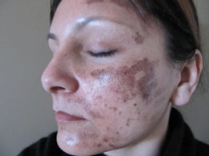 A patient who has been burned during laser treatment