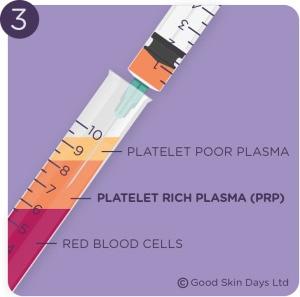 PRP-injections-leeds-3