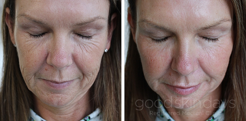 Before  After - Good Skin Days-1727