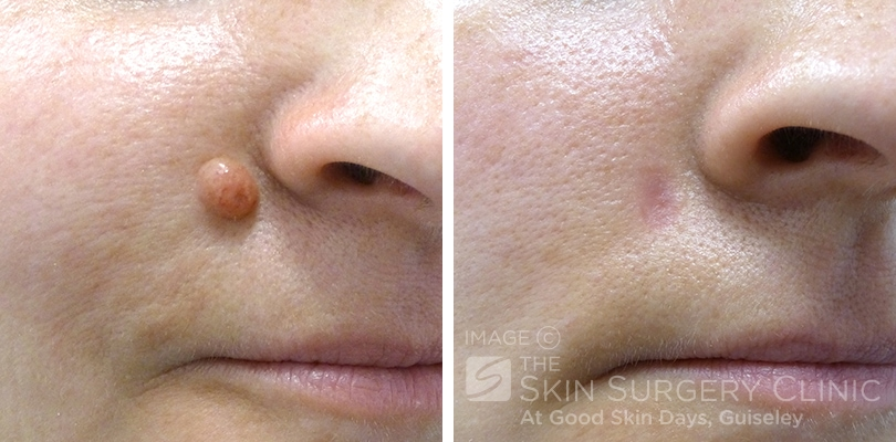 Mole Removal Before And After | www.imgarcade.com - Online Image ...