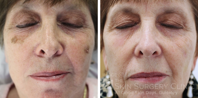 Botox, Fillers and Hair Removal Before & After Photos - Good