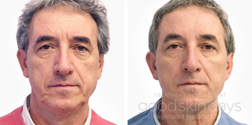 Before Amp After Good Skin Days