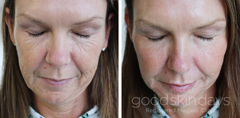 Dermal Fillers in Leeds - Before and After