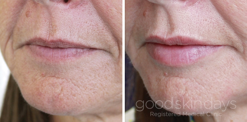 Lip Fillers in Leeds - Before and After