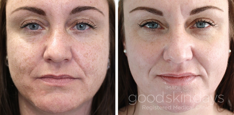 facial resurfacing laser