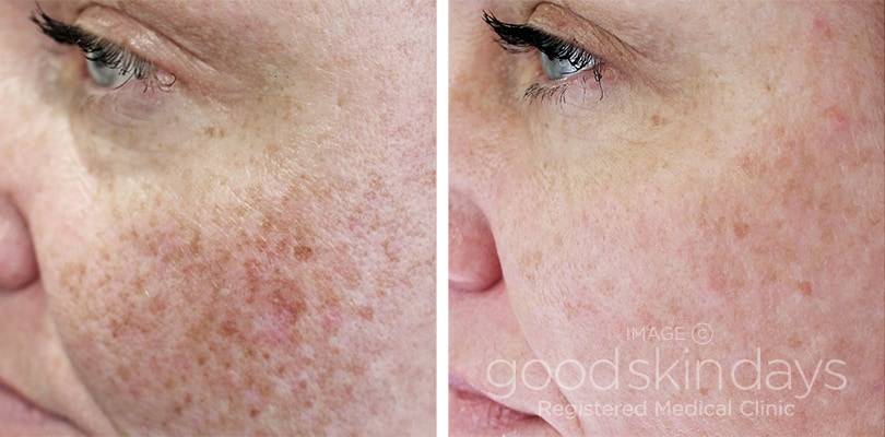Laser Skin Resurfacing in Leeds - Before and After