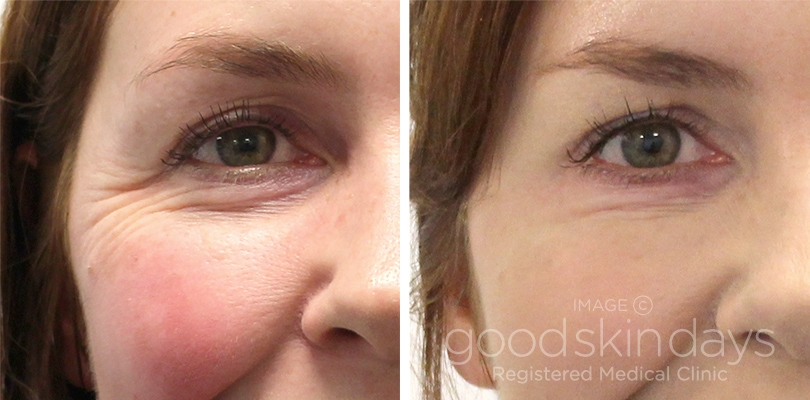 Genuine Botox Injections In Leeds And Harrogate Good