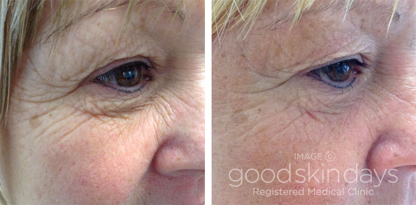 Botox in Leeds - Before and After