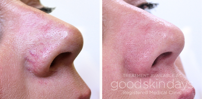 Facial Thread Vein Removal in Leeds Yorkshire - Before and After