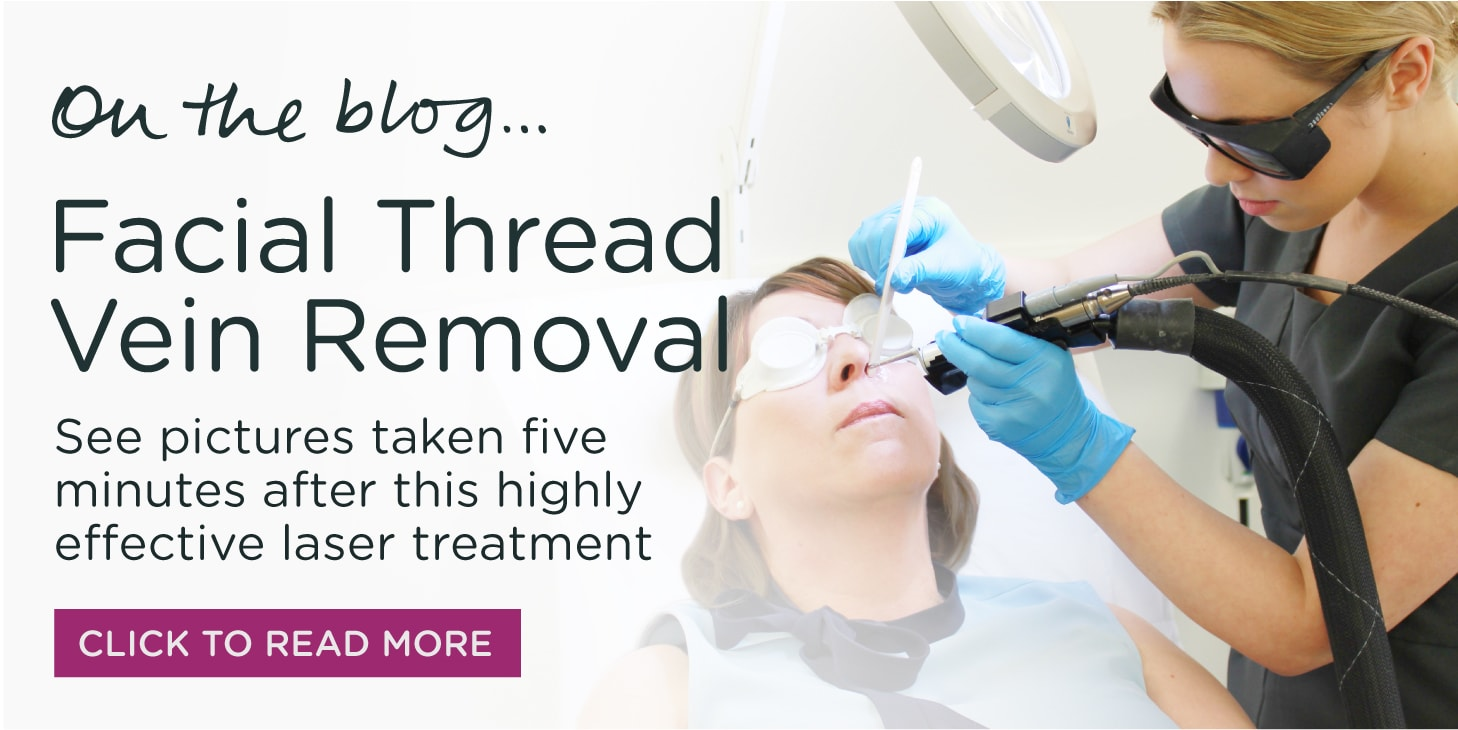 Laser Facial Thread Vein Removal