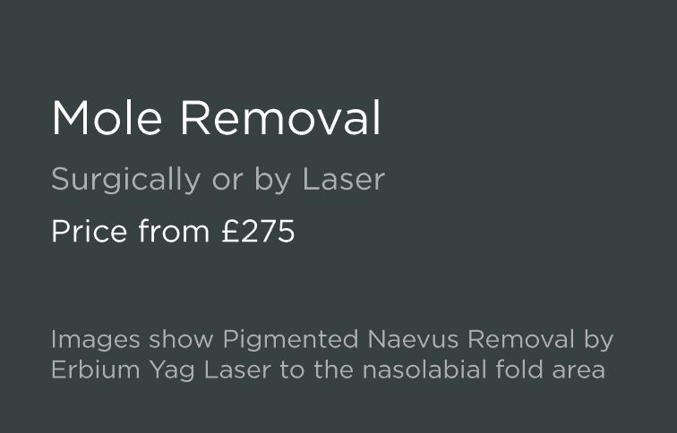 Laser Mole Removal - Leeds & Bradford - Good Skin Days