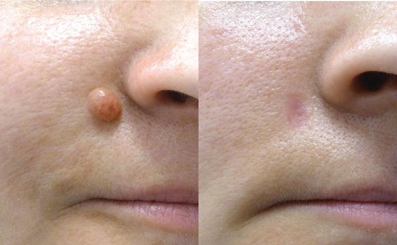Facial mole removal procedure