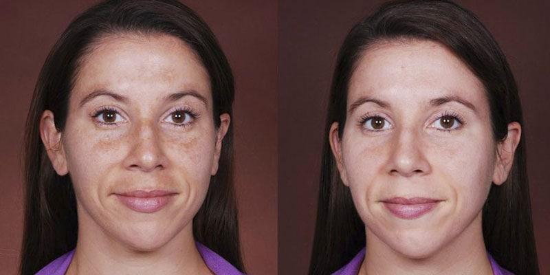 Obagi C-Rx System - Before and After