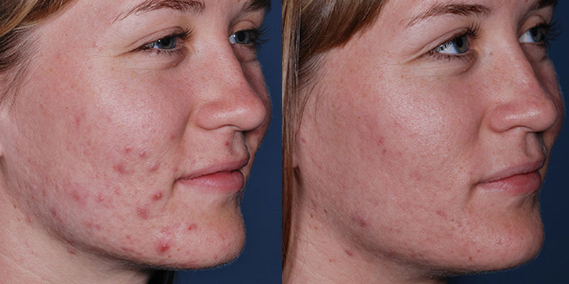 Obagi CLENZIderm System - Before and After