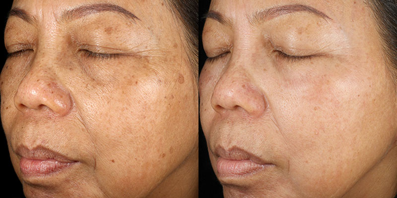 Obagi Nu-Derm System - Before and After