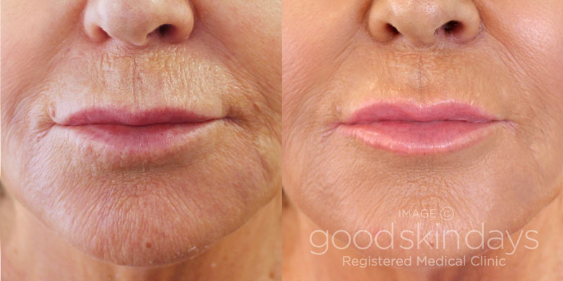 Juvederm Volite Face Leeds Bradford Harrogate Yorkshire - Before and After