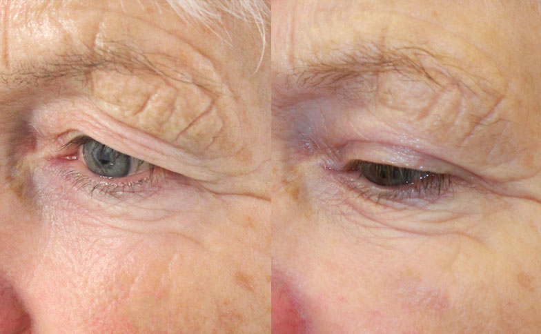 Upper Eyelid Surgery Blepharoplasty Leeds Bradford Harrogate