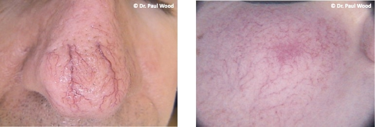 Yellow Light Laser treatment for Facial Thread Veins