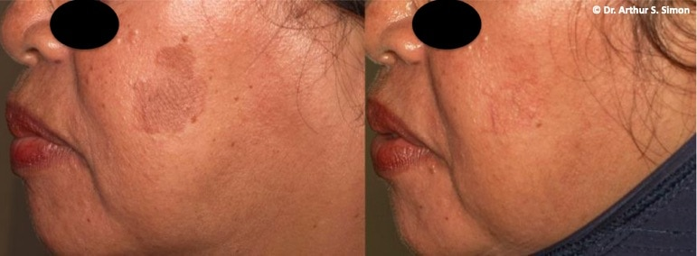 Yellow Light Laser treatment for darker skin types