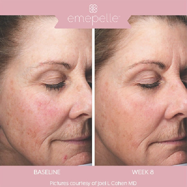 Emepelle Menopause Skin Treatment - Before and After